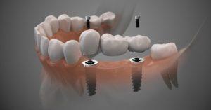 digital-implant